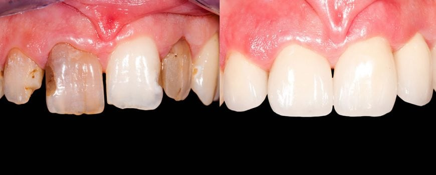 Image of dental crowns before after treatment