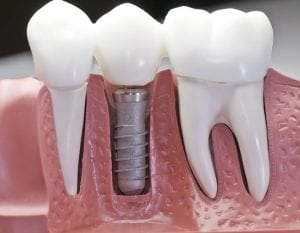 Dental implant model side view cut out