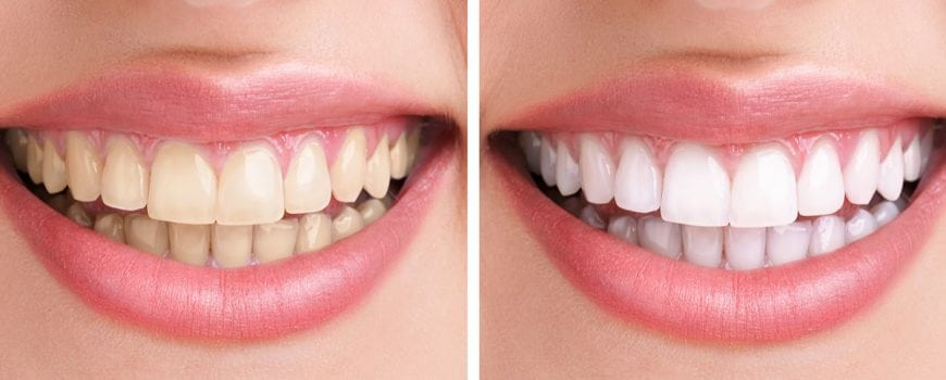 teeth whitening before after smile