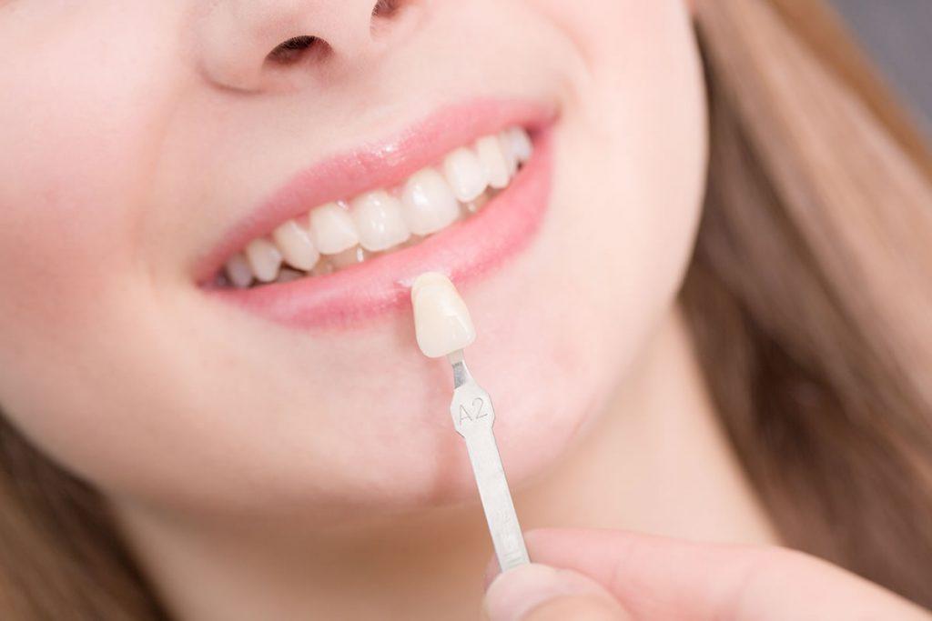 Image of smiling woman choosing colour of dental veneers